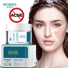 Acne Moist Cream Buy Acne Moist Cream With Free Shipping On