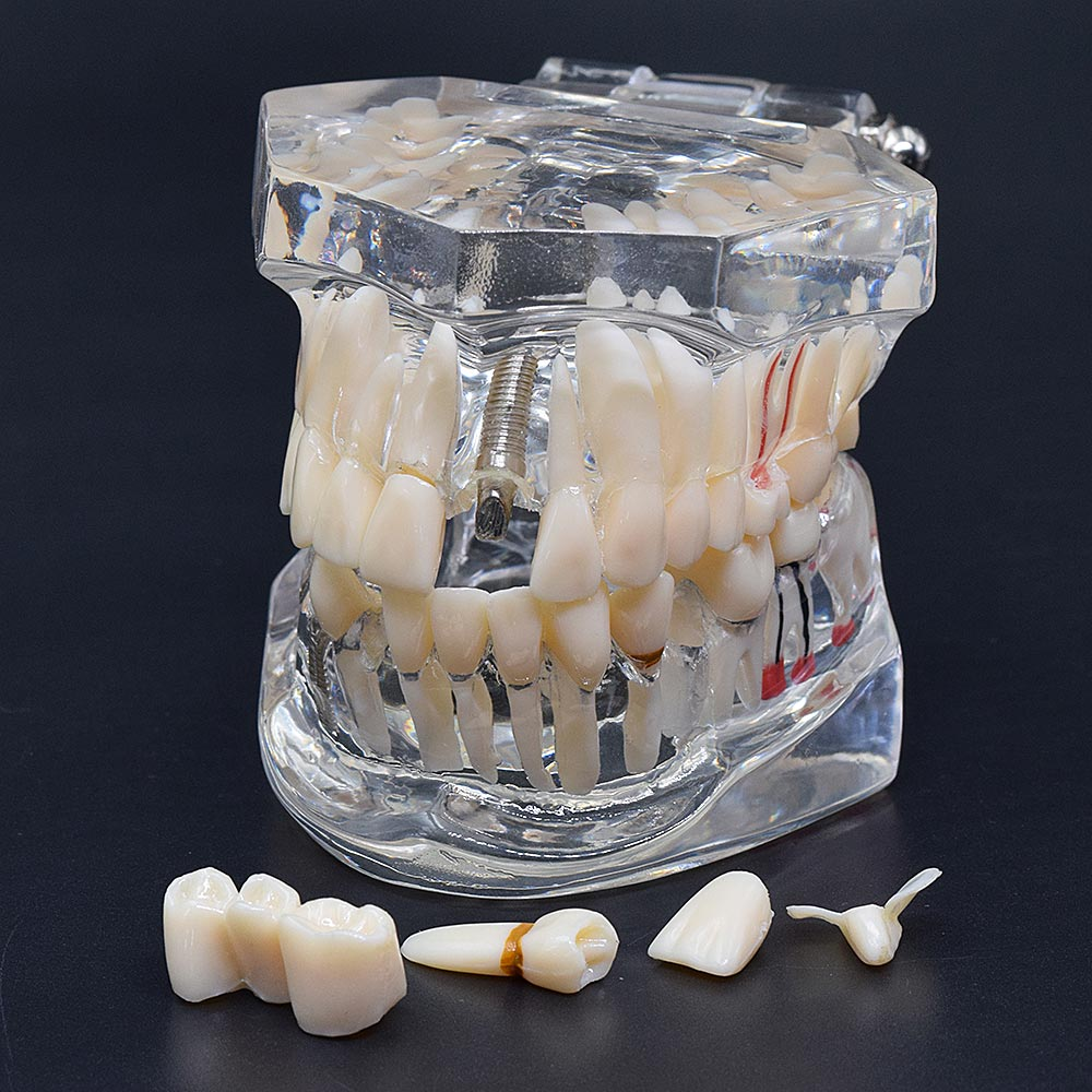 1pcs Dental Implant Disease Teeth Model With Restoration Bridge Tooth Dentist For Medical Science Dental Disease Teaching Study