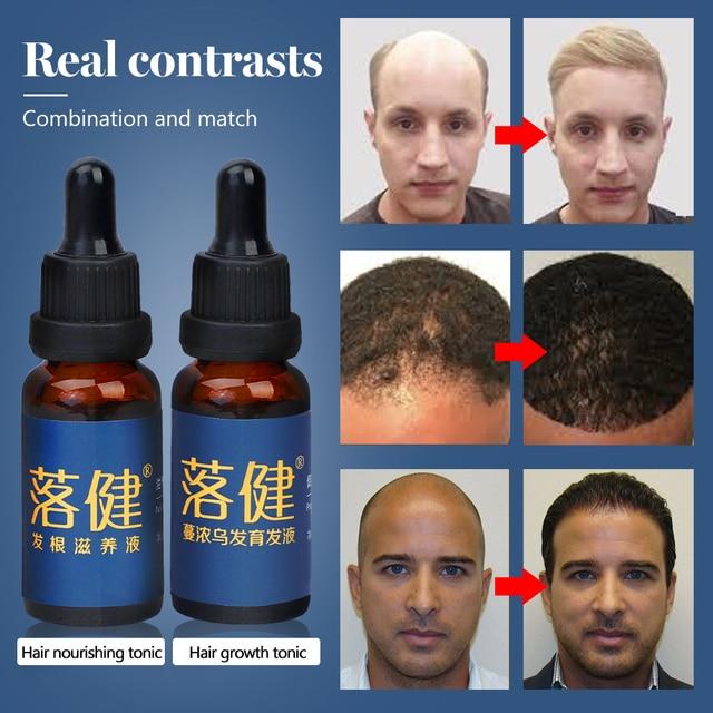 Hair Care Hair Growth Essential Oil Essence Hair Loss Liquid Treatment Health Care Beauty Dense Hair Growth Serum for Men Women 1