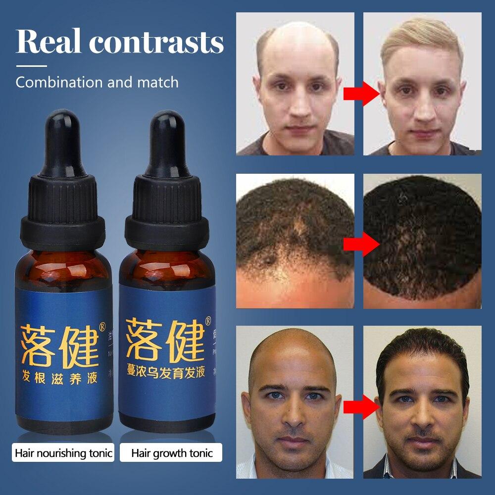 Cuidados com o cabelo crescimento do cabelo óleo essencial essência perda de cabelo tratamento líquido cuidados de saúde beleza densa soro de crescimento do cabelo para homens