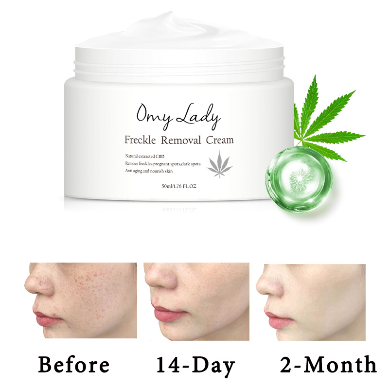 Freckle Removal Cream (2pcs)