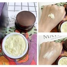 Whitening cream freckles pigmentation melasma removal skin lightening for face anti aging