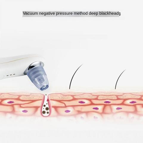acne poros cleaner exfoliate levantamento empresa beleza equipamentos