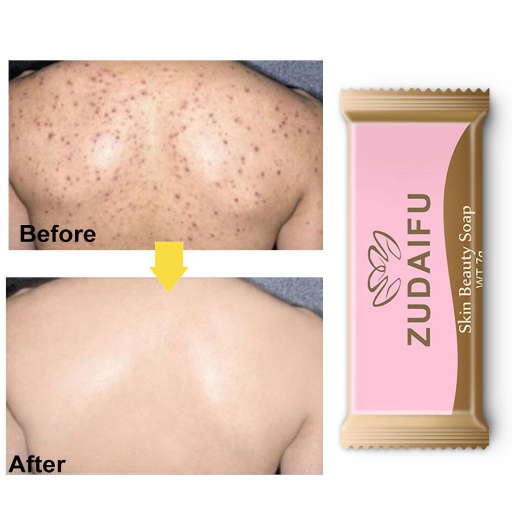 7g Pink Sulfur Soap Skin Acne Psoriasis Seborrheic Eczema Anti Fungal Bath Whitening Soap Shampoo Anti-mite Soap Wholesale TSLM1