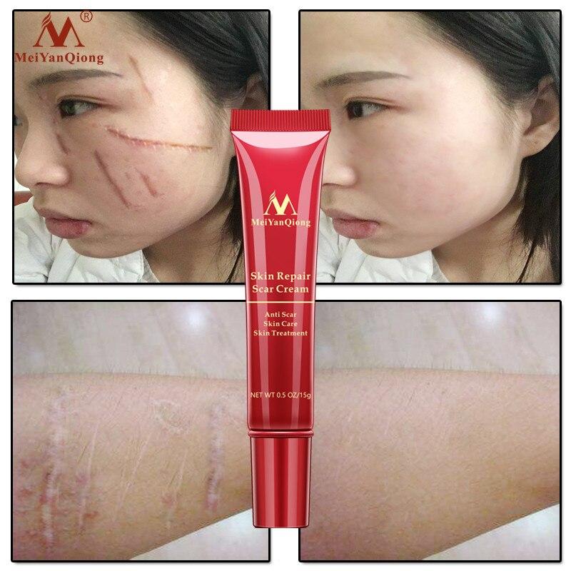 2019 Brand New Hot Acne Scar Stretch Mark Repair Cream Treatment Blackhead Whitening Cream Skin Repair Face Cream 15ml Maternity