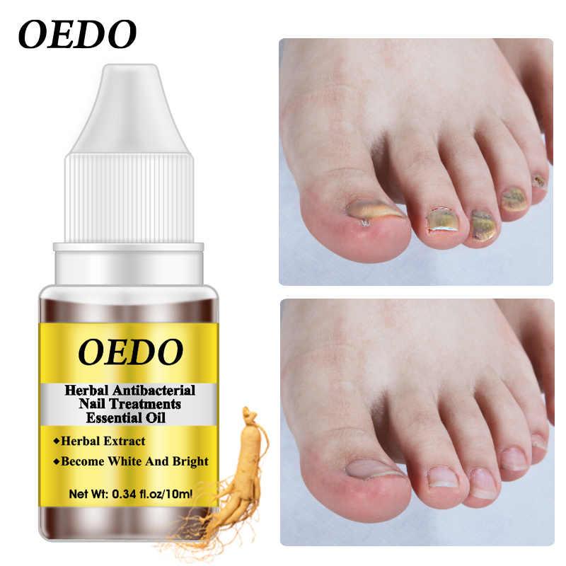 Herbal Antibacterial tratamiento de uñas aceite esencial Extracto de hierbas uñas hongos arte herramientas de reparación cuidado de las uñas del pie mejorar la infección