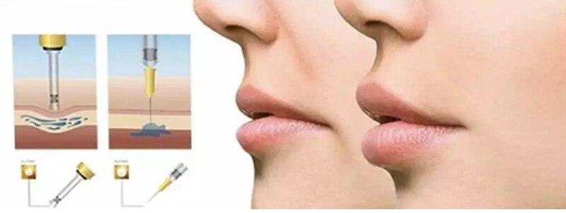 Efficient-Lip-Enhancer-Gun-No-Needle-Hyaluron