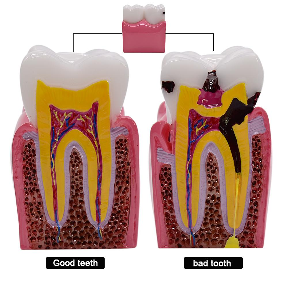 1pc 6 Times Dental Caries Comparsion Models Tooth Decay Model For Dental Study Teaching Dental Anatomy Education Teeth Model