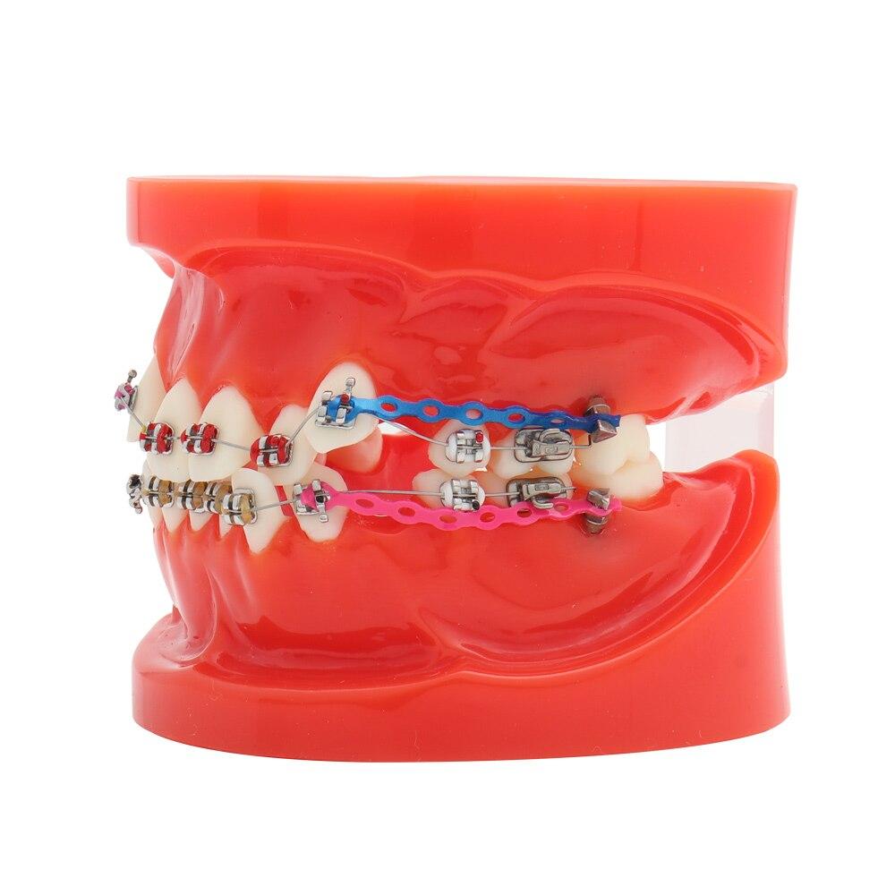 dentes ortodonticos padrao dental modelo com suportes tubos bucais fio de ligadura tratamento ortodontico vermelho