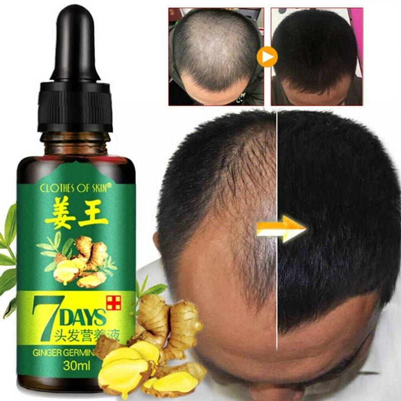 Essence-Oil Hair-Loss-Treatment Hair-Growth-Serum Ginger Germinal 7-Days Women