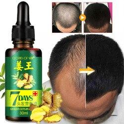 Gengibre crescimento do cabelo essência 7 dias crescimento do cabelo germinal soro essência óleo tratamento de perda de cabelo crescimento cabelo para homens