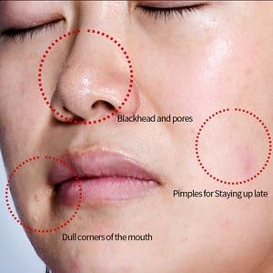 Image 3 - MEIKING Whitening Face Cream Anti Wrinkle Anti Acne Day Moisturizing Cream Skin Care Shrink pores Tight Resveratrol Facial Cream