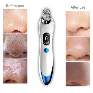 Image 2 - 真空ポアクリーナーフェイスクリーニングにきび除去ツールにきび毛穴にきび除去洗顔美容顔マシン