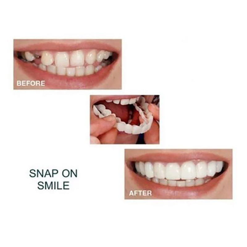 BellyLady 2 Pcs Reusable Whitening Beautiful Comfort Fit Flex Cosmetic Teeth Denture Braces Dental Care Accessories Cosmetic