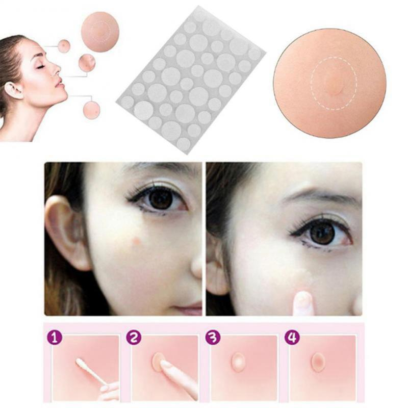36Pcs Skin Tag & Acne Patch Hydrocolloid Acne And Skin Tag Remover Treatment Patches Blackhead Blemish Removers Facial Care Tool