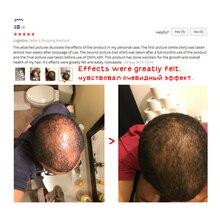 Hair Growth Spray Essential Oil Liquid