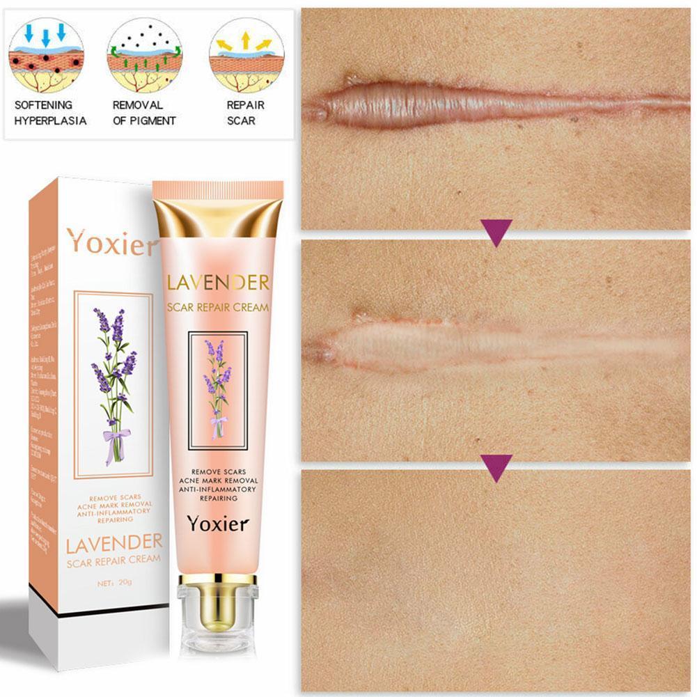 Lavender Scars Repair Cream Scald Burn Stretch Marks 2