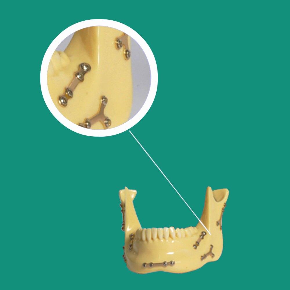 dentes ancoragem para ensino comunicacao 05