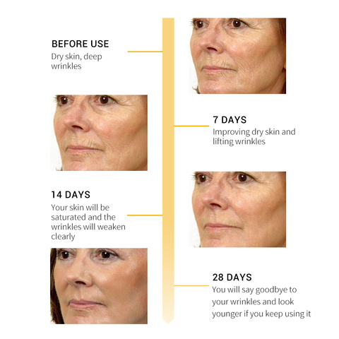 breylee 10 pcs soro facial retinol colageno