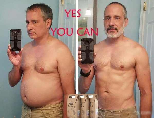 10 unids/bolsa medicina china dieta de adelgazamiento parche de pérdida de peso más fuerte Slim Patch Pads desintoxicación hoja adhesiva herramienta de Estiramiento facial