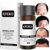 Suero esencial antipérdida de cabello, suero denso para el crecimiento del cabello, aceites previene el cuidado del pelo para calvicie TSLM2