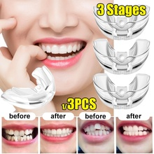 Tooth Brace Alignment Trainer Dental Professional-Guard Silicone-Material Orthodontic