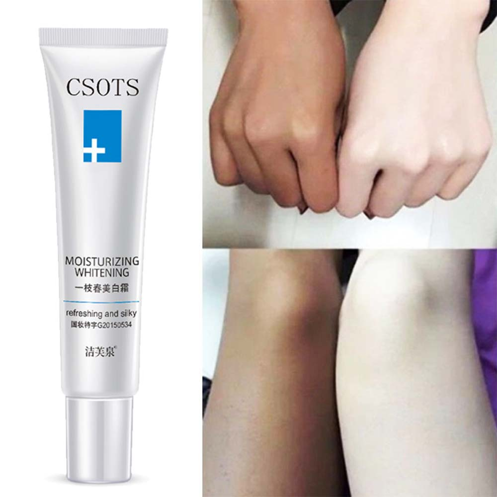 Whitening Cream Fade And Remove Freckless Whitening Miosturizing for Face Neck body Leg Skin Care Weaked Color Spot