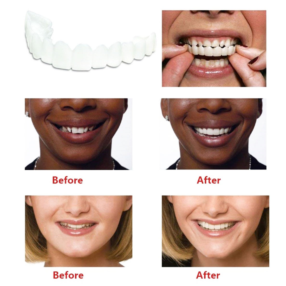 High Quality And Comfortable Denture Care Dentures, Upper Row Of White Dentures Artificial Dentures 5pcs