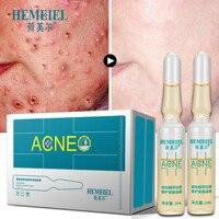 15Pcs Natural Anti Acne Face Serum Essence Scar Removal Cream Whitening Repair Pimple Remover Acne Treatment Skin Care