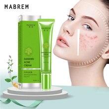 Acne-Removal-Cream Moisturizing-Acne-Cream Skin-Care Whitening Shrink-Pores Fade-Acne-Spots