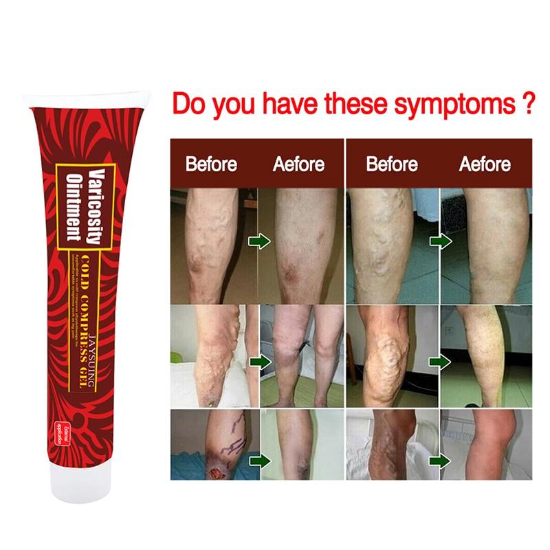Здоровье Уход на ногами варикозные вены лечение крем эффективное лечение васкулит фалебит паук вены боль вариксия мазь ангиита