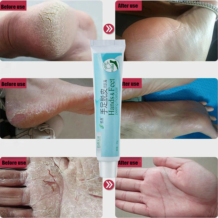 Anti-Crack Repair Cream Heel Hand Foot Moisturizing Feet Skin Care Dry Cracked