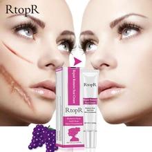 RtopR Hotest Body Scar Stretch Marks Remover Cream Skin Repair Face Creams Acne Spots Treatment Blackhead Whitening