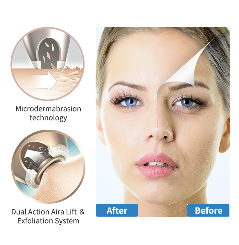 Closeout DealsNEWDERMO Microdermabrasion-Peel-Machine Beauty-Tool Vacuum-Suction-Spa-Tool Skin-Care