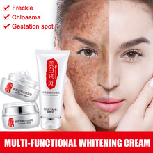 Hot sale Face Skin Whitening Remove Freckle Spot Cream Moisturizers Skin Clean Face Dark Spots Cosmetics