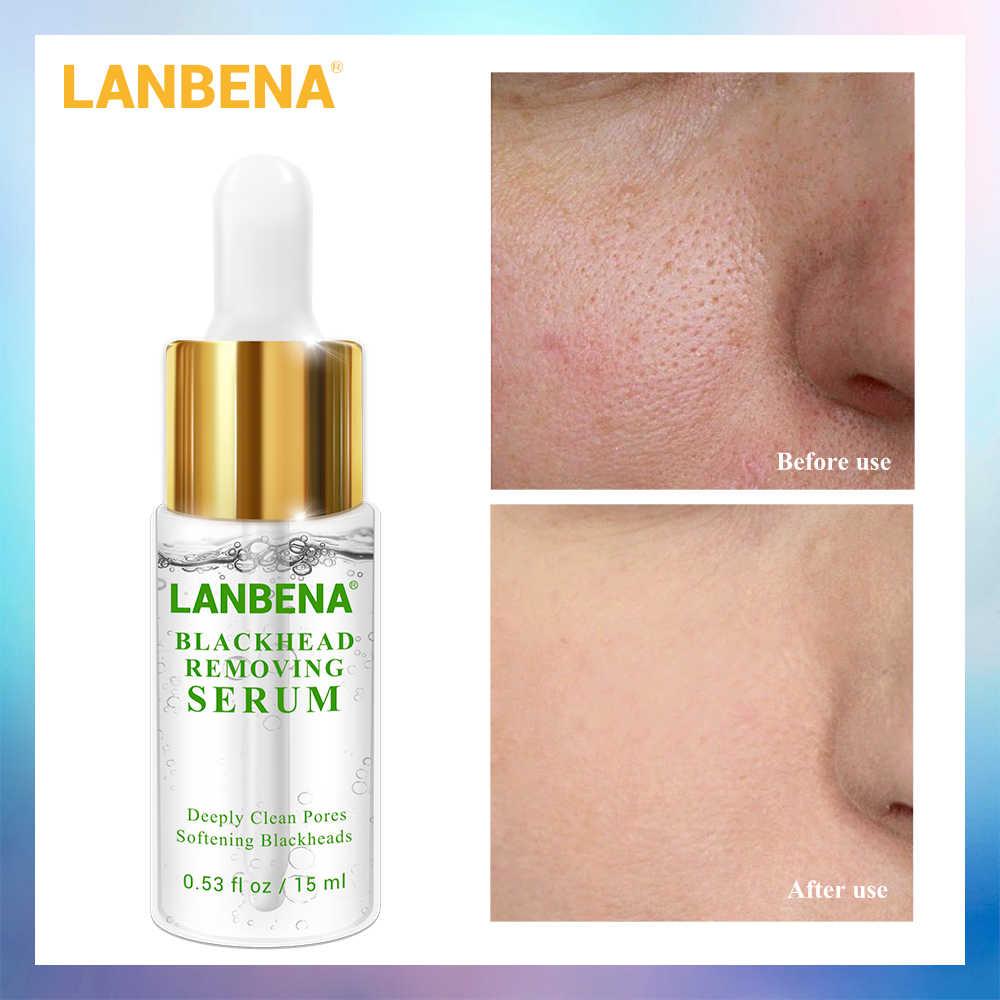 LANBENA Pore Treatment Essence Nose Blackhead Remover Acne