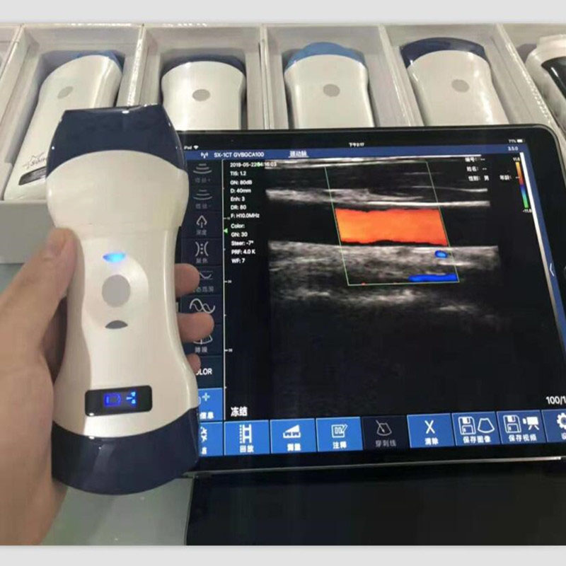 128 elements PW color wireless veterinary ultrasound convex and linear probe double head animal pregnancy