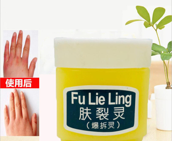 Fu Lie Ling Moisturizing for Frost Crack Dry Itching Skin Dry Scaly Skin Nourishing Cream image