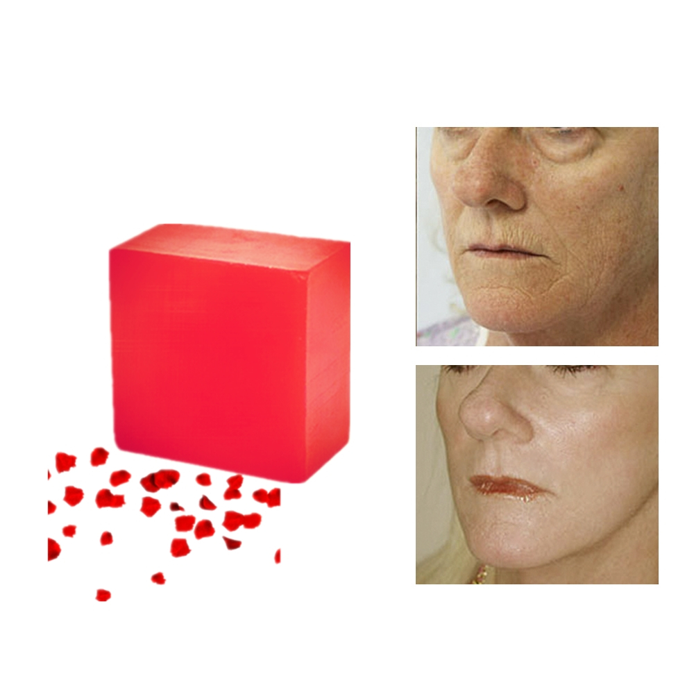 Chinese Herbal Blackhead Acne Treatment Red Rose Extraction Beauty Soaps Fast Pore Refining Shower Bathing Nourish Skin Soaps