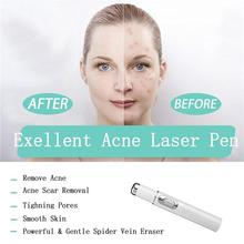 Newest Blue Light Therapy Varicose Veins Treatment Laser Pen Soft Scar Wrinkle Removal Treatment Acne Laser Pen Massage Relax blue light therapy acne laser pen soft scar wrinkle removal treatment device skin care beauty equipment