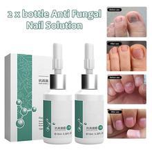 Fungus Nail Treatment Repair Liquid Nail Solution Onychomycosis Paronychia Infection Herbal Toe Fing
