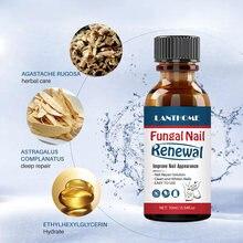Мощная жидкость для лечения Ногтей онихомикоз паронихия противогрибковая