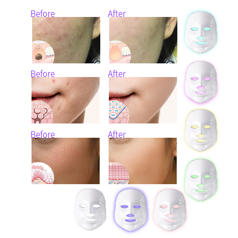 Image 4 - 7 Colors Led Facial Mask Beauty Skin Care Rejuvenation Wrinkle Acne Removal Face Beauty Therapy Whitening Tighten Instrument-in Face Skin Care Tools from Beauty & Health