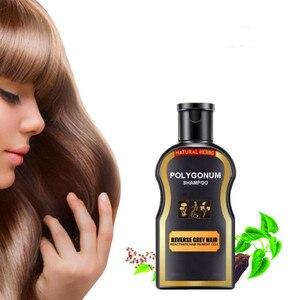 Anti-off Anti-Dandruff Shampoo Damaged Hair Treatment Herbal Deep Moisturizing Nourish Hair Growth Repair Care Solution TSLM2
