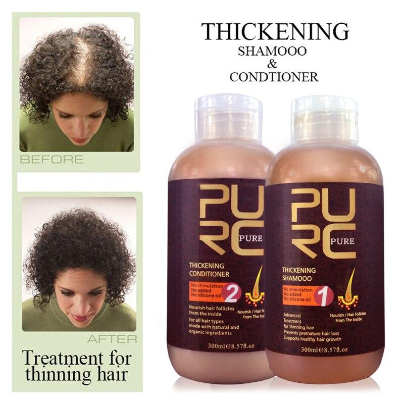 600ml Anti Hair Fall Fast Hair Growth Product Hair Thickening Shampoo Hair Conditioner Free Shipping Anti Hair Loss Treatment Hair Growth Hair Growth Productshair Loss Aliexpress