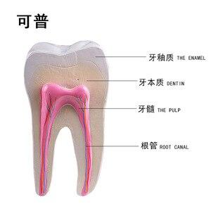 Image 1 - Giải Phẫu Người Răng Hàm Mở Rộng Mô Hình Khỏe Mạnh Lớn Cấu Trúc Răng Nha Khoa Oral Giảng Dạy Khuôn Trang Trí