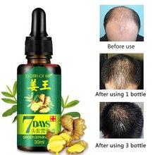 30 мл имбирь быстрый рост эссенция для волос против выпадения волос масло питание жизненная сила корня волос для ухода за волосами ремонт волос