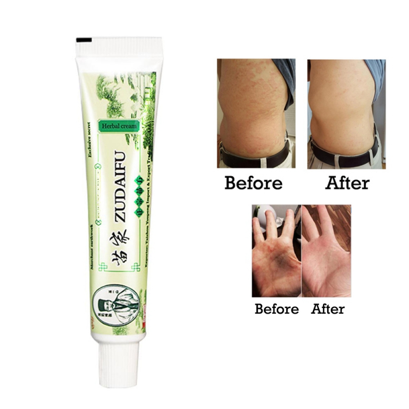 15g Body Treatment Psoriasis Cream Skin Solution Dermatitis and Eczematoid Eczema Pruritus Psoriasis Ointment Cream - image
