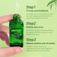 BREYLEE Acne Treatment Face Serum Anti Acne Pimple Scar Remover Moisturizing Oil-Control Whitening Shrinking Pores Essence 5