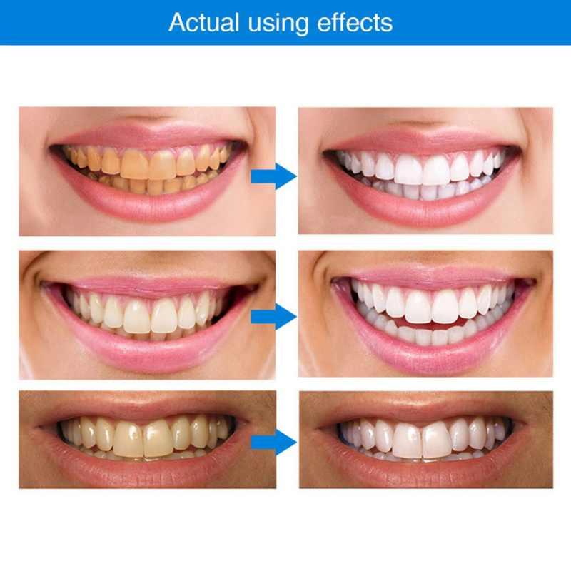 Набор для отбеливания зубов HiSmile в Семее
